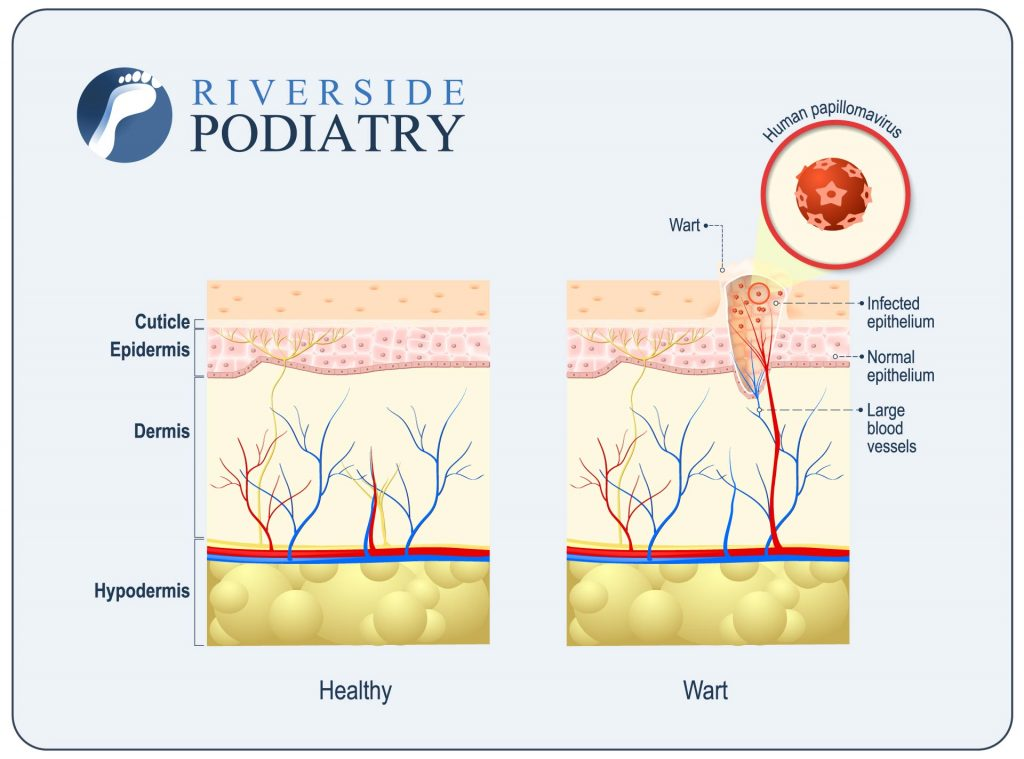 plantar warts what are they why do i have them and how do i get rh riversidepodiatry com au foot wart diagram foot wart diagram