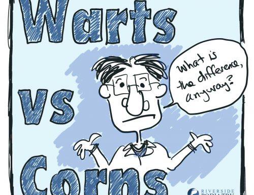 Corns vs Warts